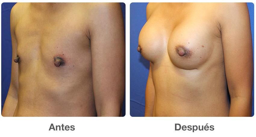 Anestesia y aumento de seno - La cirugía de aumento