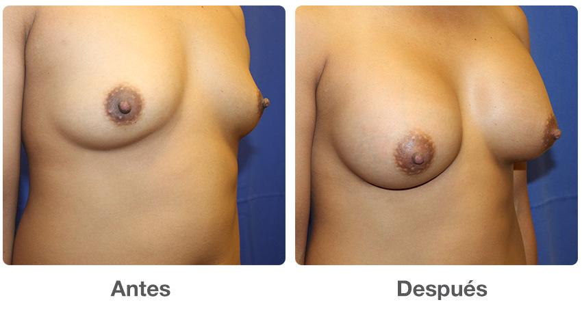Aumento de senos en Iowa