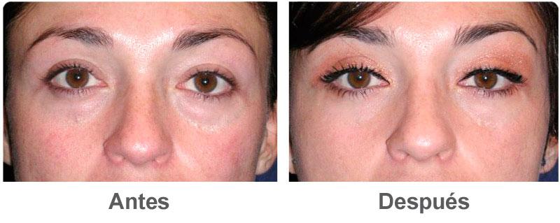 Los hinchazones y la rubefacción alrededor de los ojos