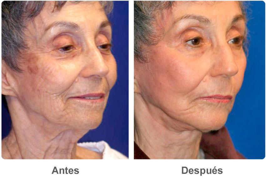 Que ayuda de las manchas de pigmento en el cuerpo