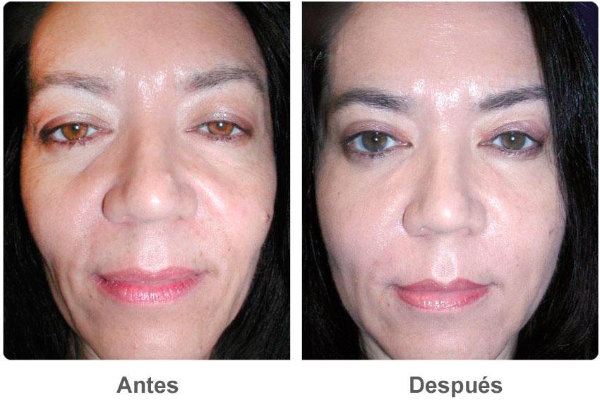 Injerto De Grasa Facial Por El Cirujano Cosm 233 Tico De Las