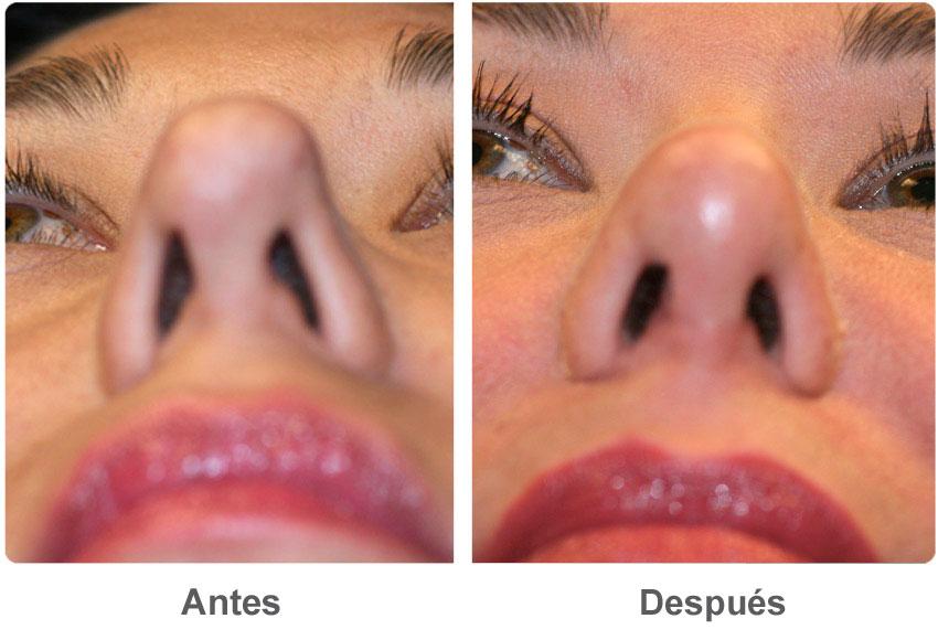celulitis nasal
