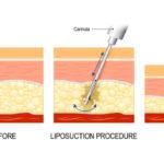¿La técnica de la cirugía de liposucción marca la diferencia?
