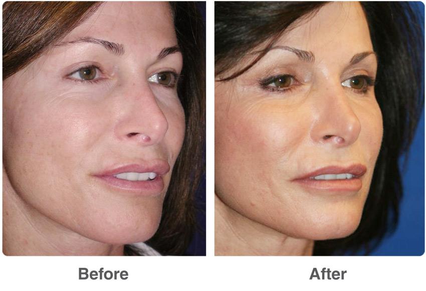 Laser Skin Resurfacing Las Vegas And Laser Skin
