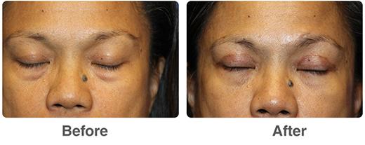 Eye Cosmetic Surgery