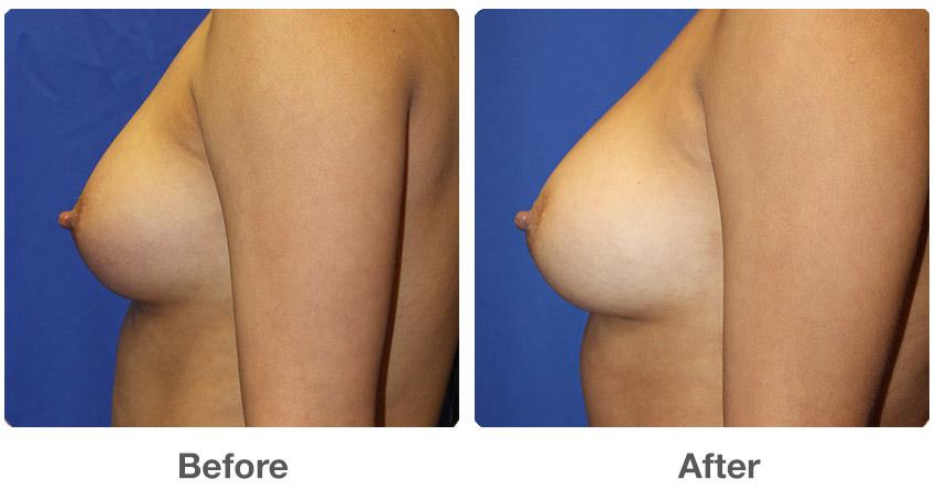Natural Breast Augmentation