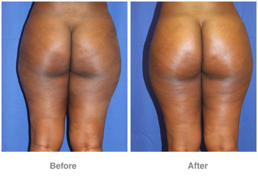 Buttock enhancement cost