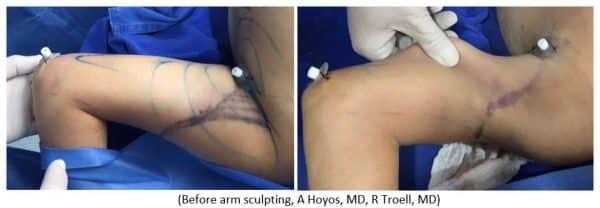 Before arm sculpting, A Hoyos, MD, R Troell, MD