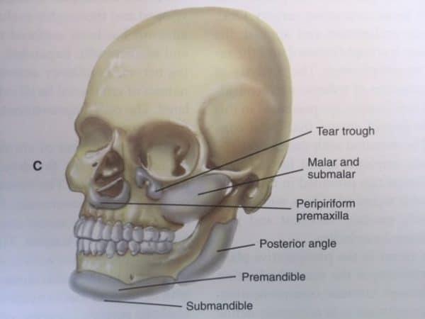 Location of Facial Implants: Las Vegas