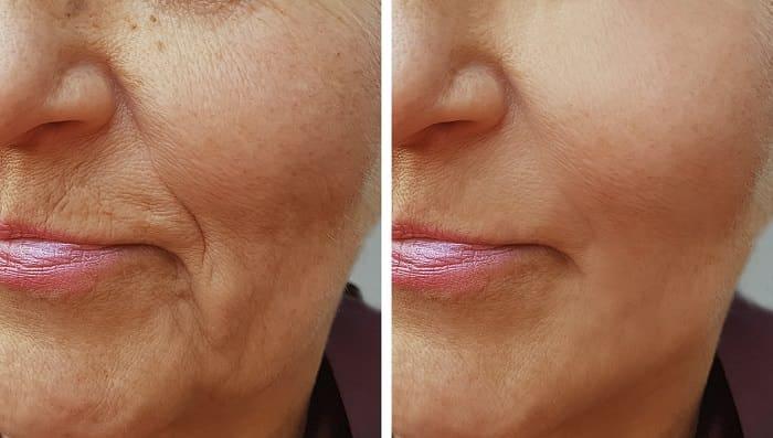 wrinkle treatments las vegas