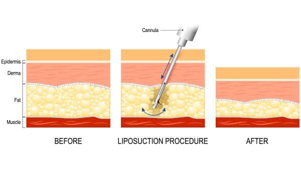 liposuction surgery techniques